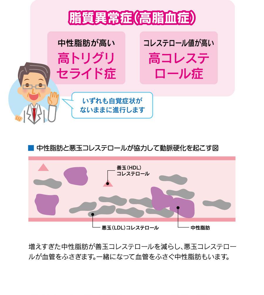 脂質異常症(高脂血症)